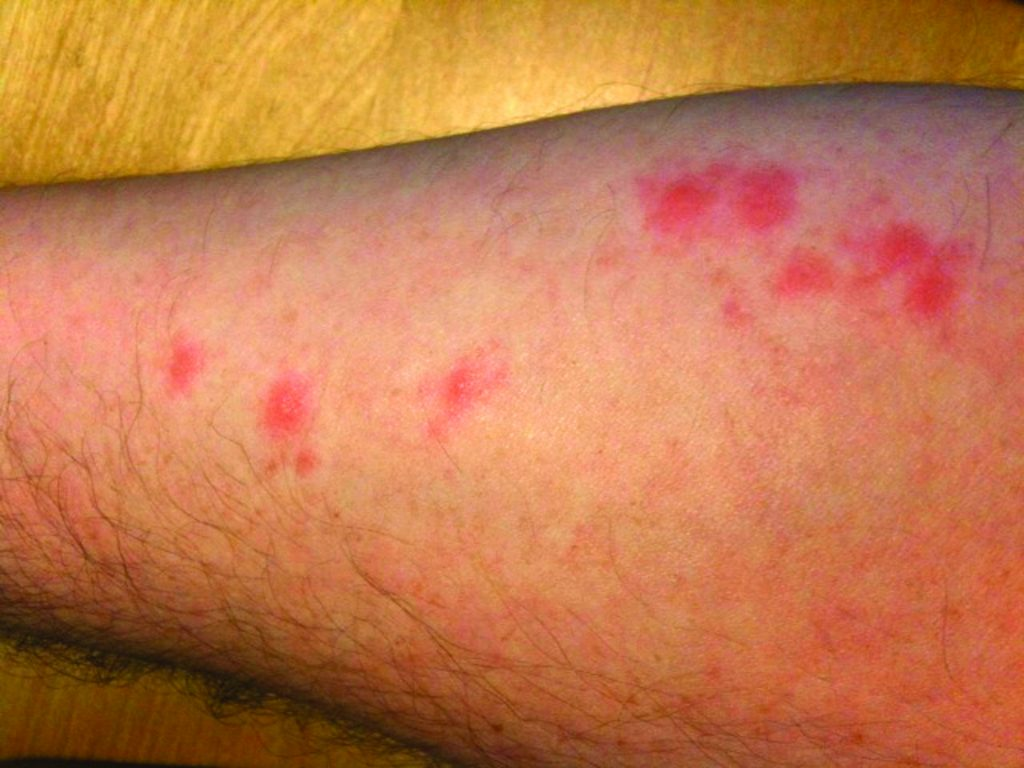 bites from hungry bed bugs